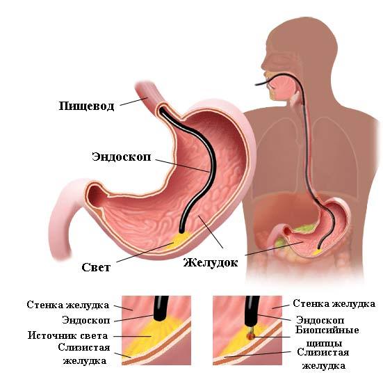 эндоскопия при эрозивном гастрите