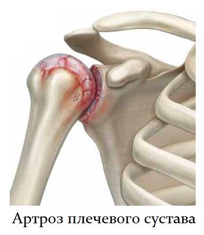 артроз плечевого сустава