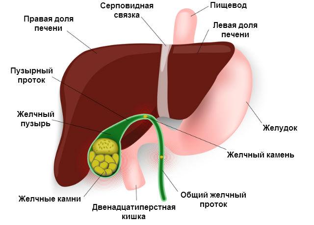 заболевания желчного пузыря